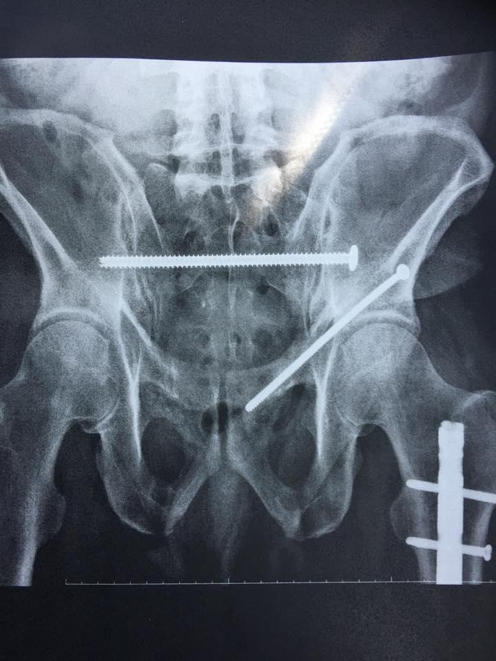 accident bones 2